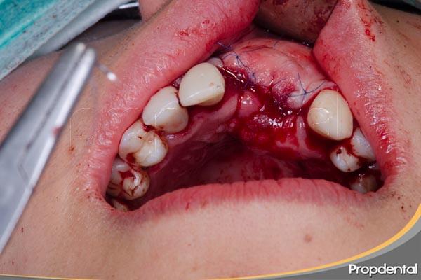 caso clínico de injerto de hueso