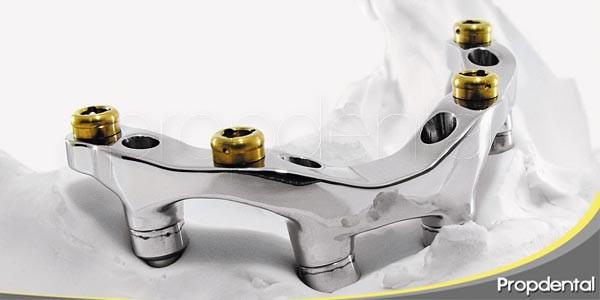 como actuar en caso de problemas en los implantes
