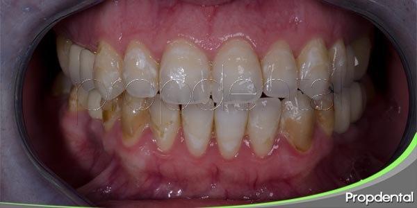 como evitar la erosión dental