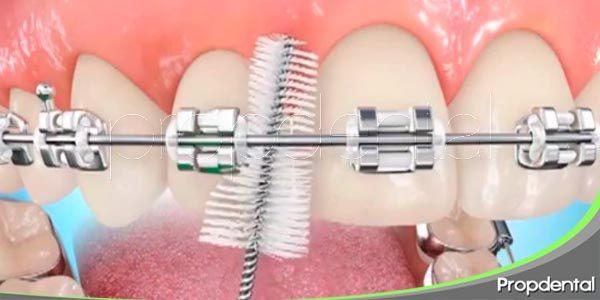 consejos de higiene dental durante la ortodoncia