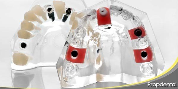 especialidades en implantes dentales
