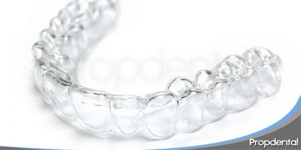 importancia de los retenedores en la ortodoncia