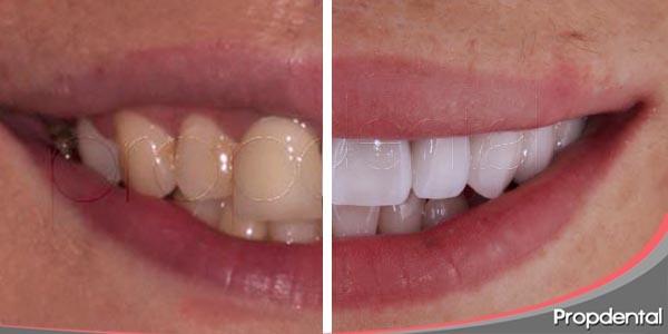 la transformación completa de la sonrisa