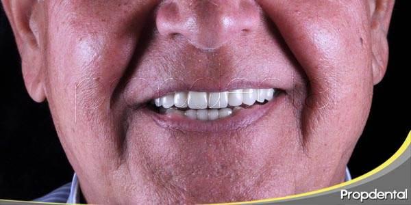 los implantes dentales no tienen límite de edad