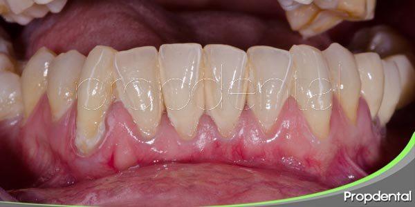 objetivo del tratamiento de la periodontitis