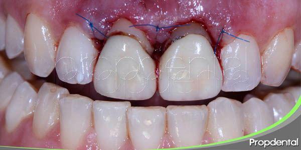 particularidades de la gingivoplastia