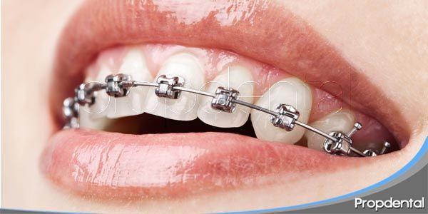 períodos del tratamiento de ortodoncia