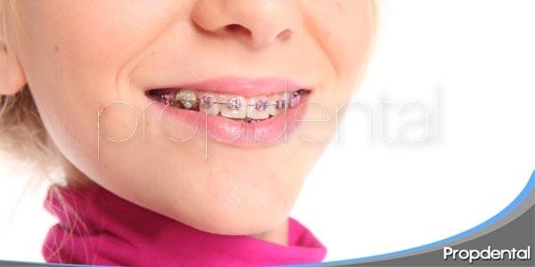 problemas habituales en ortodoncia