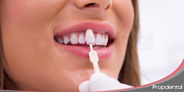 que debemos saber acerca del blanqueamiento dental