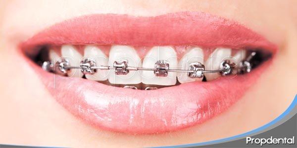 riesgos del proceso de ortodoncia