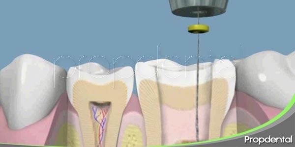 salvar la muela a través de una endodoncia