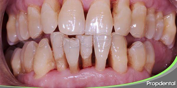 seis causas comunes de la periodontitis