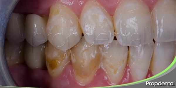síntomas de la erosión dental