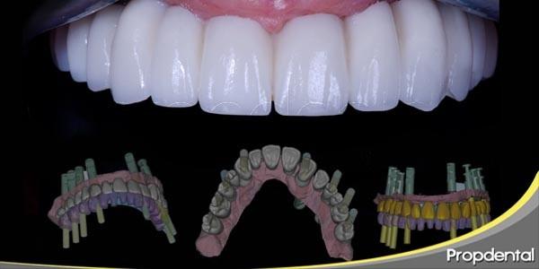 sistemas de reposición dental completa