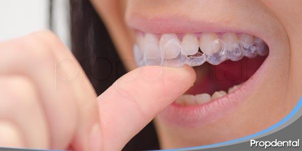 tipos de aparatos dentales