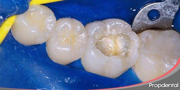 tipos de empastes dentales