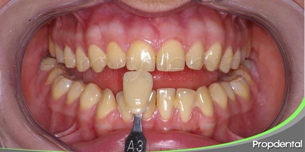 actuar contra las manchas dentales