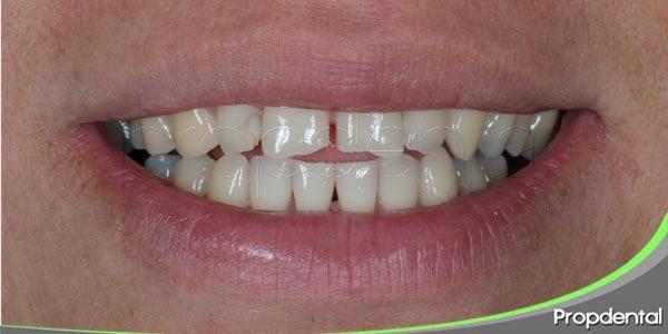 alteraciones dentales comunes