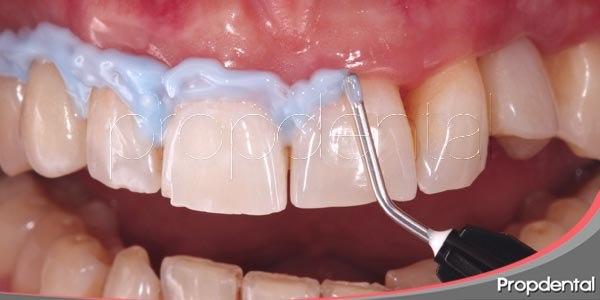 blanqueamiento y manchas dentales