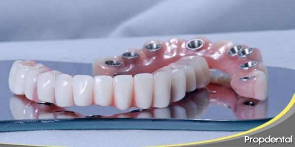 calidad de vida con implantes dentales