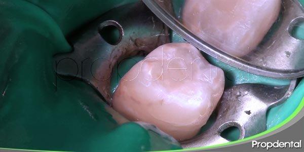 como se realiza un empaste dental