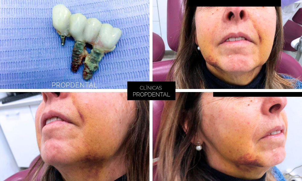 motivos de fracaso del implante dental