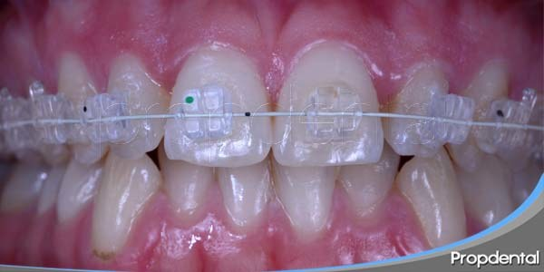 higiene oral durante la ortodoncia
