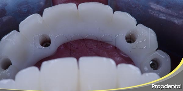 implantes dentales sin dolor