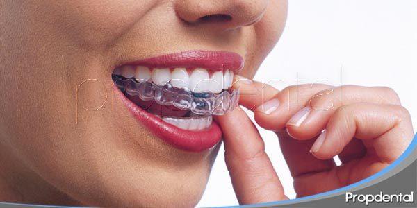 invisalign: ortodoncia invisible