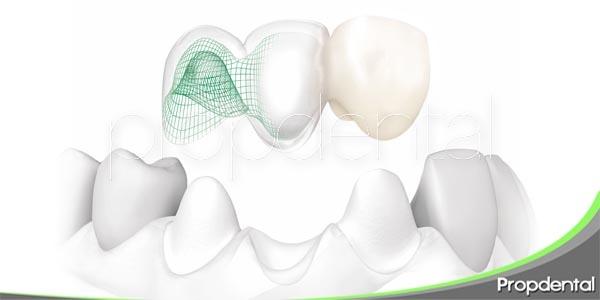 los puentes dentales