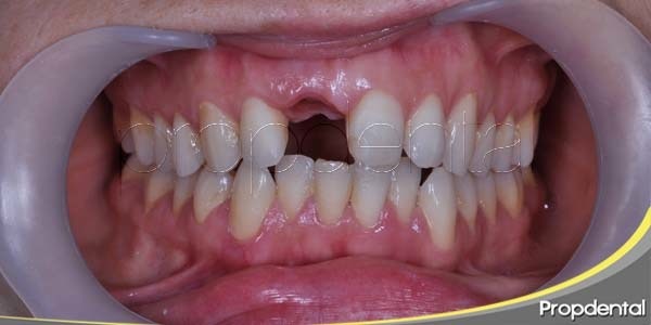 pasos previos a la colocación de un implante