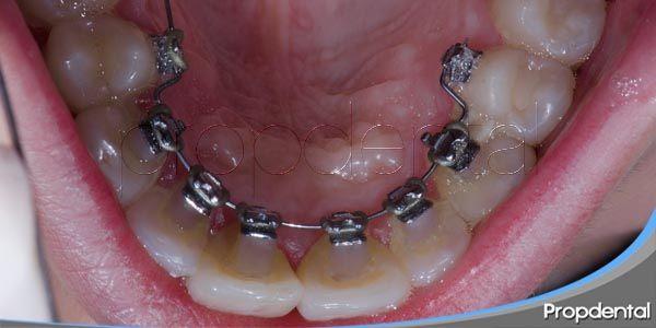 procedimiento de la ortodoncia