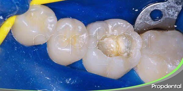 procedimiento del empaste dental