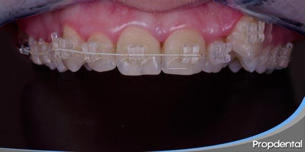 tratamientos utilizados en el proceso de ortodoncia