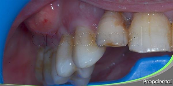 variedades de abscesos dentales