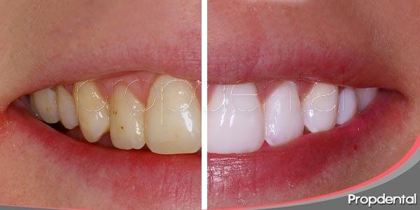 ventajas de las carillas dentales de composite