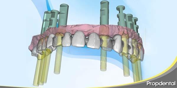 ventajas de los implantes con cirugía guiada