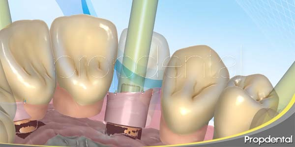 ventajas de los implantes dentales inmediatos