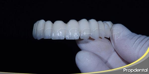 5 características de un implante de calidad