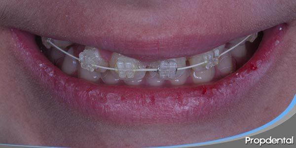 beneficios de la ortodoncia temprana
