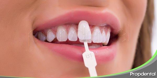 blanqueamiento o carillas dentales