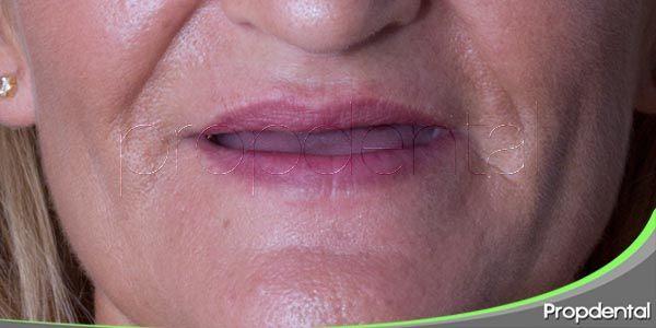cambios de la cavidad bucal en pacientes geriátricos