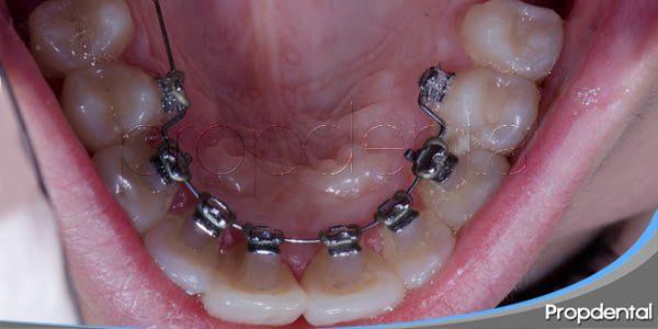 características de la ortodoncia lingual