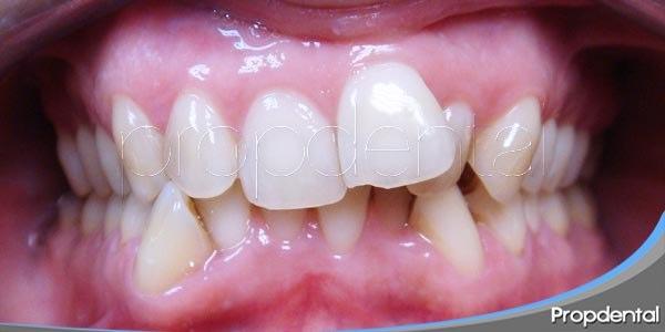 causas de la malposición dentaria