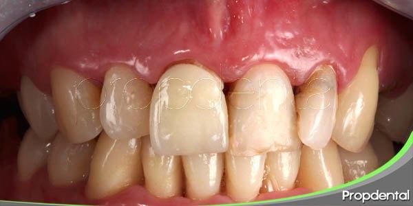eliminación de pigmentos gingivales
