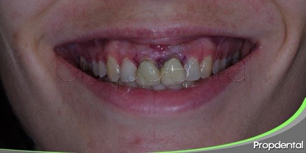 fases del tratamiento de la enfermedad periodontal