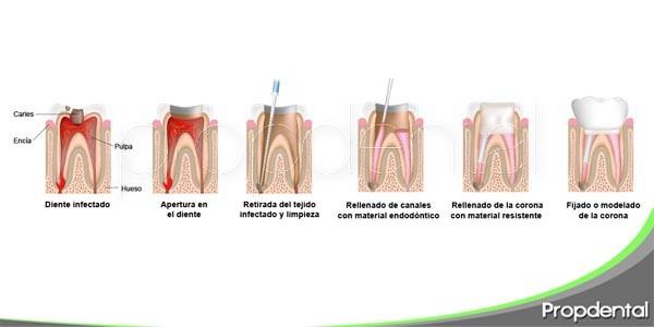 guía para la endodoncia