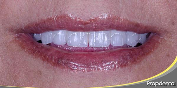 implantes dentales para sonreír