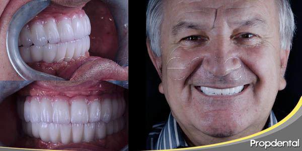 implantes para mayores de 50