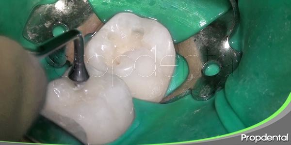 importancia del empaste dental